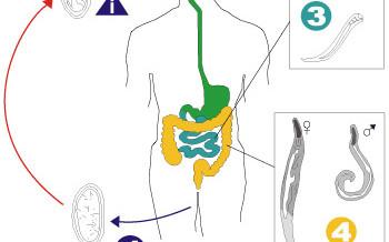 Madenwürmer vorbeugen
